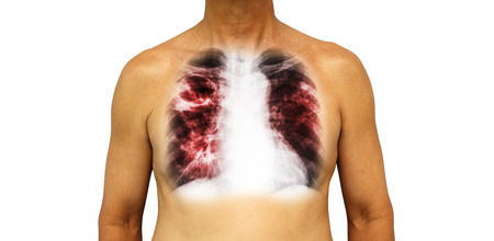 chest cavity: Pulmonary tuberculosis . Human chest with x-ray show cavity at right upper lung and interstitial infiltrate both lung due to infection . Isolated background .