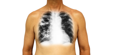 Pulmonary tuberculosis . Human chest with x-ray show cavity at right upper lung and interstitial infiltrate both lung due to infection . Isolated background .