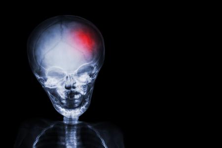 ストローク。フィルム x 線頭蓋骨と頭の赤い色が子供の体。神経学的な概念。
