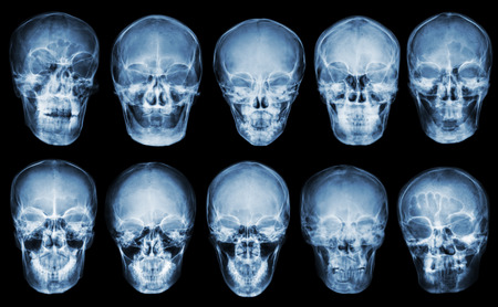 Collection of asian skull . front view  . isolated background . Stock Photo