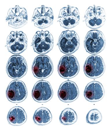 MRI brain show Brain tumor at right parietal lobe .