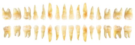 Diagramme dentaire (photographie). Tableau des dents réelles. vue horizontale avant. fond blanc isolé.