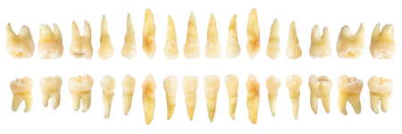 Zahndiagramm (Fotografie). Echtes Zahndiagramm. horizontale Ansicht von vorne. isolierten weißen Hintergrund.