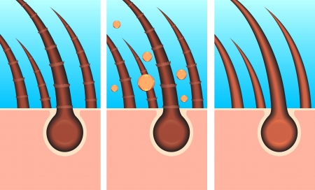 pore: skin hair layer illustration vector Illustration