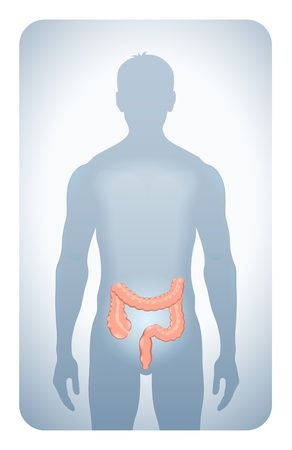 stomach ache: colon highlighted on the silhouette of a man Illustration