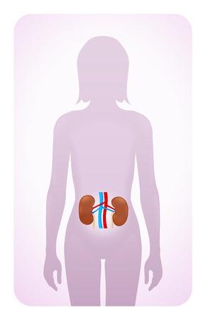 urinario: reni evidenziato sulla silhouette di una donna