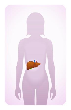 bowel: fegato evidenziato sulla silhouette di una donna Vettoriali