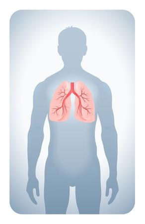 cancer de pulmon: pulmones puso de relieve en la silueta de un hombre