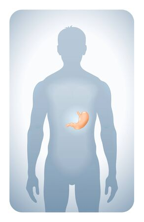 bowel cancer: stomach highlighted on the silhouette of a men
