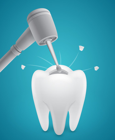 Drill boring human tooth on blue  Illustration