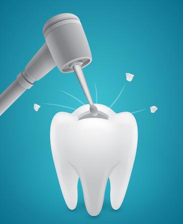 Drill boring human tooth on blue  Illustration