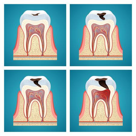 caries dental: Etapas de progreso de la caries dental en azul