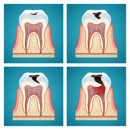 Stages progress dental caries on blue