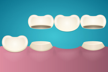 enamel: Tooth enamel in section across