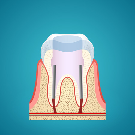 jawbone: Healthy human tooth in cutaway on blue background