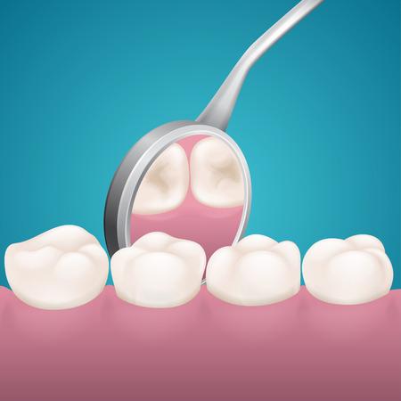 dental mirror: Four teeth and dental mirror