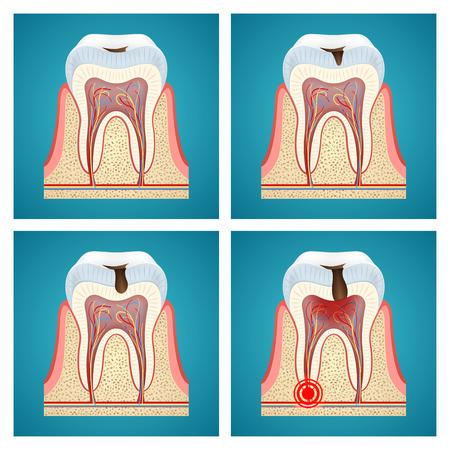 caries dental: Etapas de progreso de la caries dental y dolor de muelas