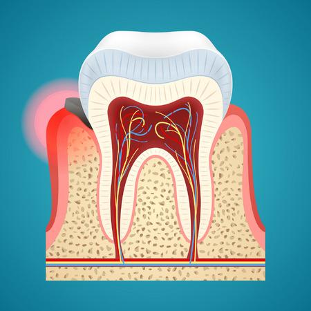 Starting gingivitis on human teeth in periodontal pocketon on blue background