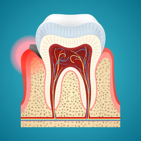 Avvio di gengivite su denti umani in pocketon parodontale su sfondo blu