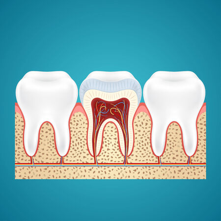 cutaway: Two healthy human tooth and one in cutaway on gum