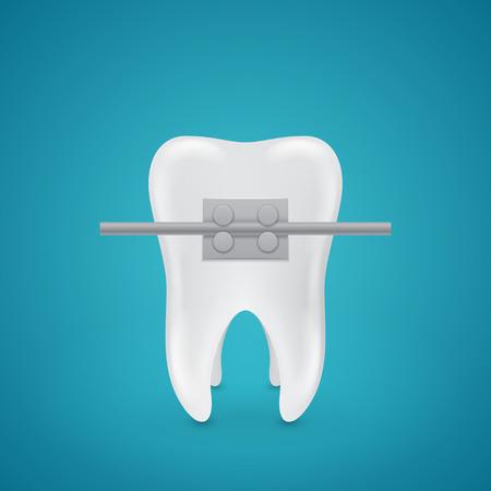 Geïsoleerde tand met nietjes op blauwe achtergrond