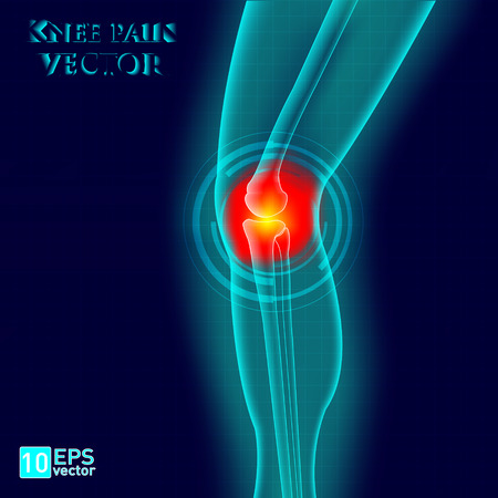 inflammation: Knee or leg X-ray screen with red circle pain vector