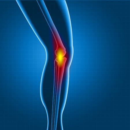 spine pain: Pantalla de la rodilla o de rayos X de la pierna con dolor c�rculo rojo Vectores