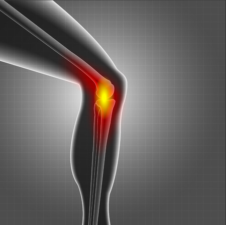 pain: Knee or leg X-ray screen with red circle pain