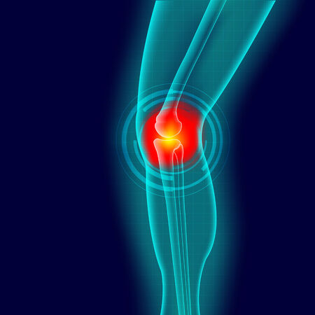 Knee or leg X-ray screen with red circle pain