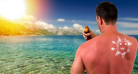 Man with sunburned skin and ocean beach with sunset