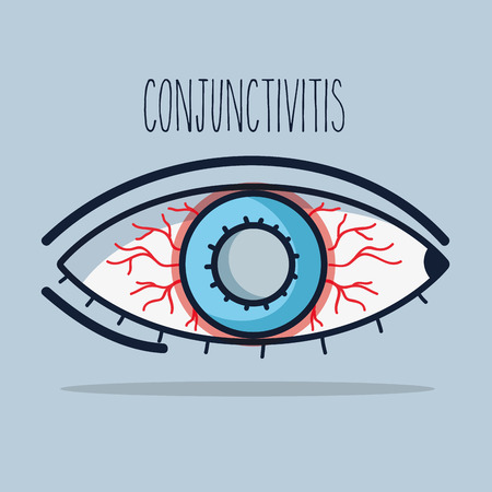 A conjunctivitis allergic inflammation of vision eye illustration.