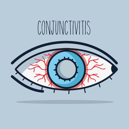 A conjunctivitis allergic inflammation of vision eye illustration.