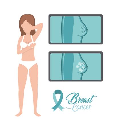 illustrazione vettoriale di prevenzione della diagnosi del cancro della donna