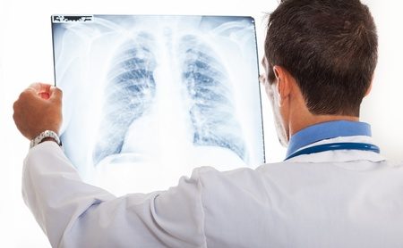 Doctor examining a lung radiography Stock Photo