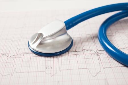 tachycardia: Detalle de un estetoscopio en un electrocardiograma