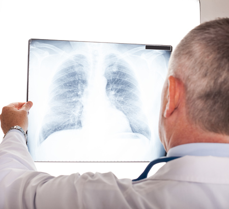 Retrato de un m?dico mirando una radiograf?a