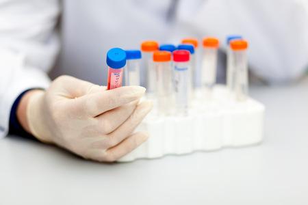 in vitro: Científico que sostiene un tubo de ensayo