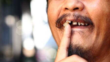 Man wobble loose tooth dental hygiene