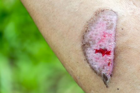Arm scald,Wounds caused by scalding hot water,Wound inflammation