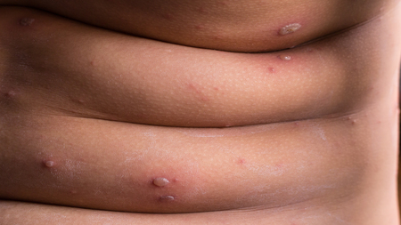 depressor: Chicken pox rash - Viral infections or chickenpox disease, Closeup