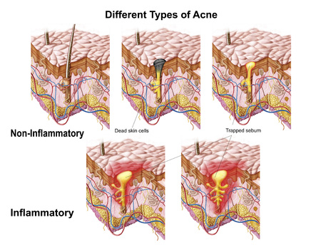 Different types of acne, non-inflammatory and inflammatory.