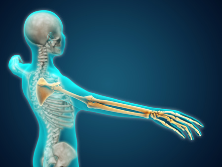 axial: X-ray view of human body showing skeletal bones in the arm and hand.