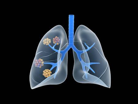 cartilaginous: Conceptual image of human lungs.