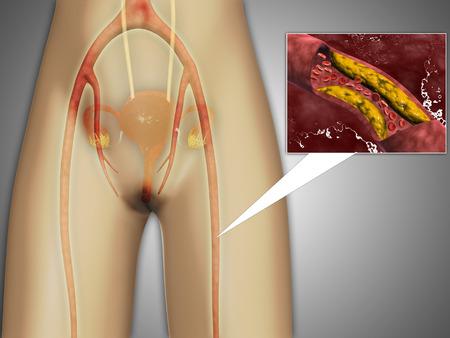corpuscles: Narrowed artery near leg with microscopic close-up.