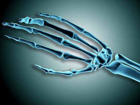 Vista de rayos x de huesos en mano humana.