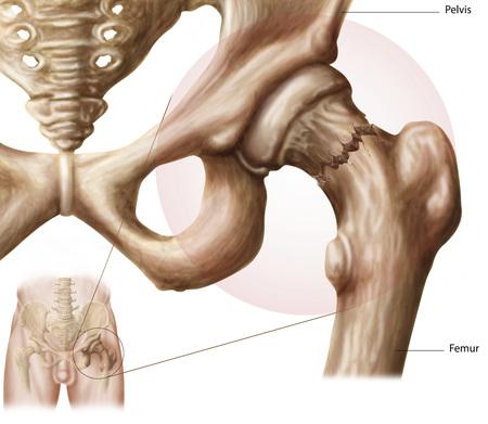 acetabulum: Anatomy of hip fracture.
