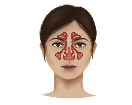 olfaction: Anatomy of nasal sinuses.