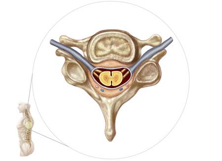 spinous: Anatomy of human vertebra. LANG_EVOIMAGES