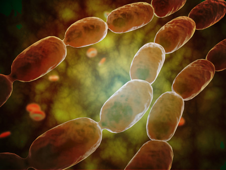 Microscopic view of bacterial pneumonia. Bacterial pneumonia is a type of pneumonia caused by bacterial infection. Pneumonia can be generally defined as inflammation of the lung parenchyma.