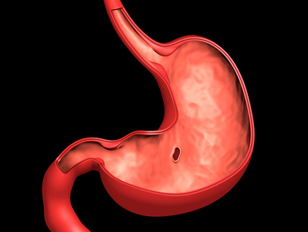 Conceptual image of peptic ulcer in human stomach.